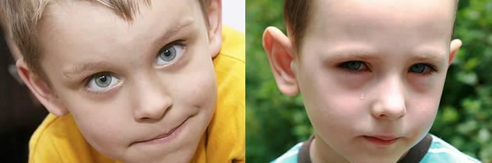 Мешки под глазами у ребенка: усталость или симптом заболевания?