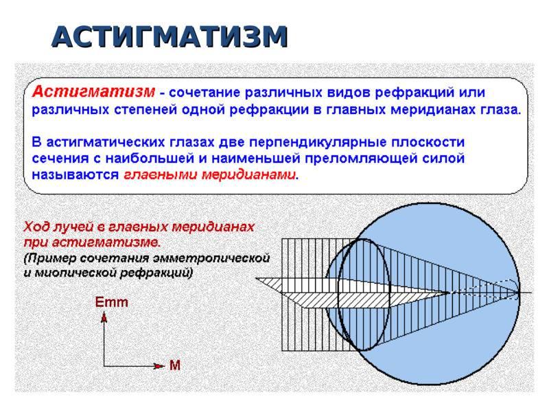 Что такое рефракция глаза, характеристика аномалий и её оценка