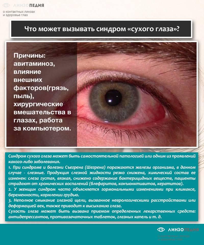Синдром сухого глаза: 7 причин и способы лечения - лайфхакер