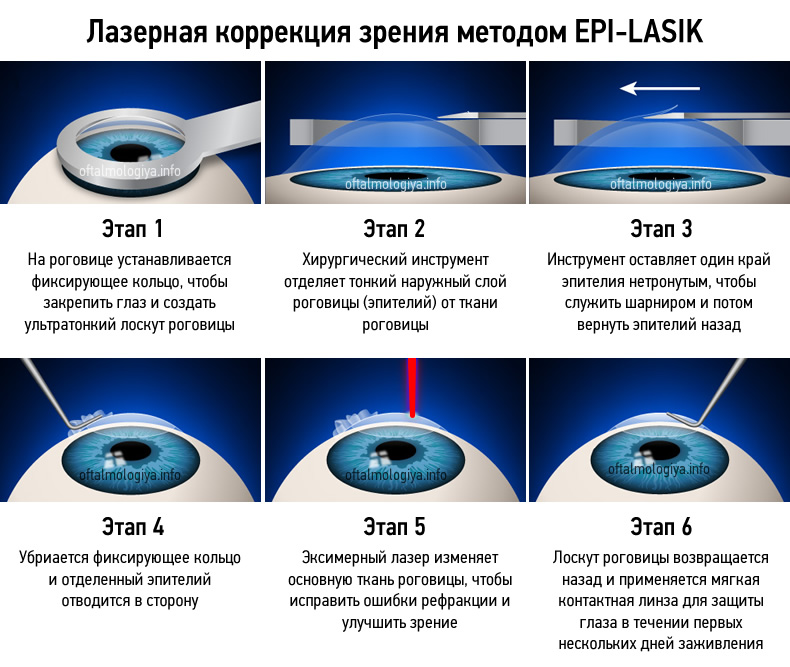 Операция на глазах ласик: отзывы, ограничения после лазерной коррекции lasik, последствия