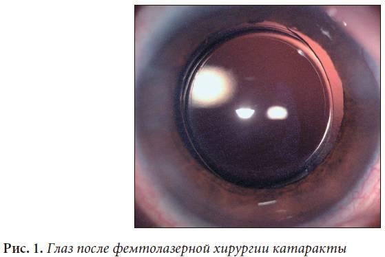 Повторная катаракта после замены хрусталика: причина осложнения после удаления