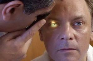 Как распознать инсульт глаза: первые симптомы и признаки