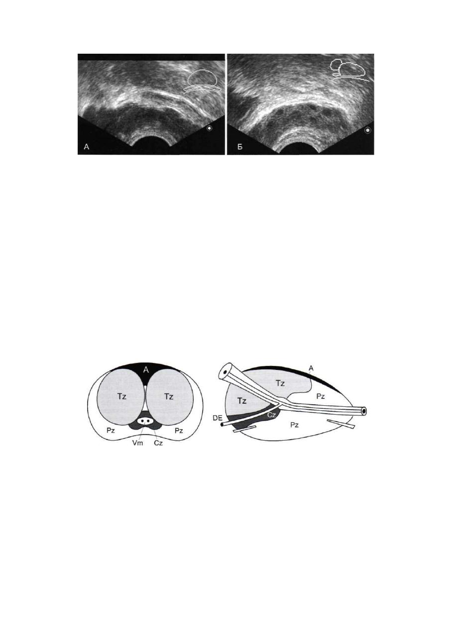 Ультразвуковая диагностика в офтальмологии