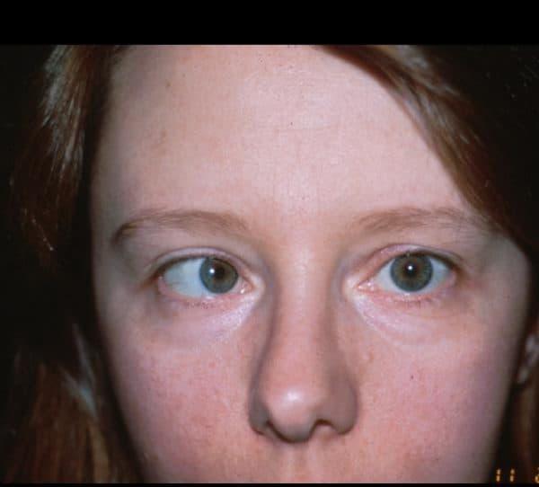 Глаза смотрят в разные стороны