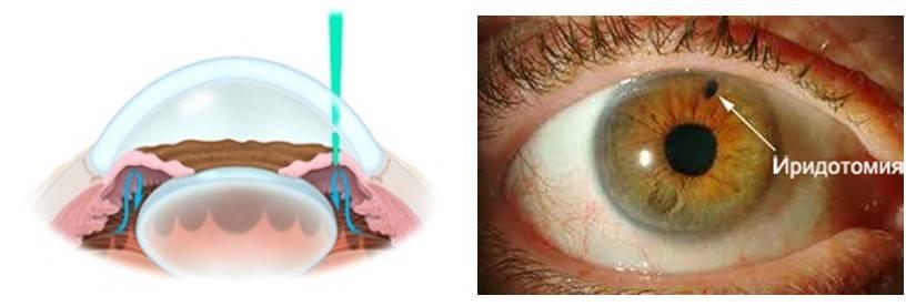 Иридэктомия: лазерное лечение глаукомы, последствия операций