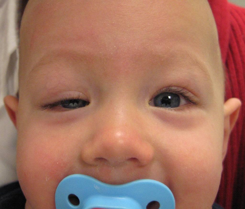 Птоз верхнего века у ребенка - что это, причины врожденного птоза у грудничков