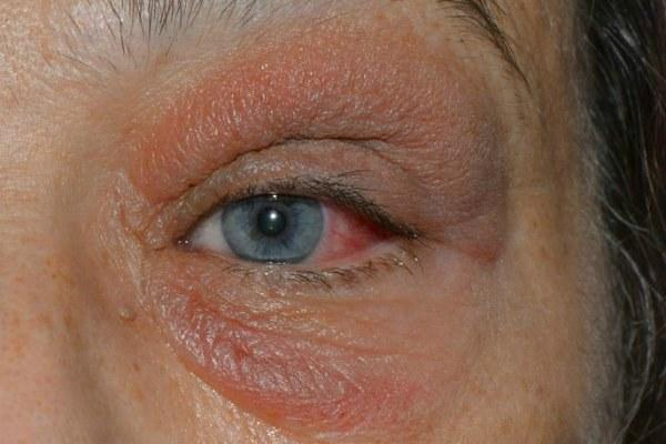Чешутся глаза в уголках возле переносицы - причины и что делать