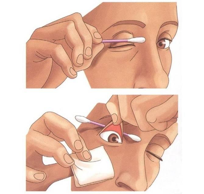 Чем промывать глаза при конъюнктивите у детей и взростлых: аптечные препараты и народные рецепты
