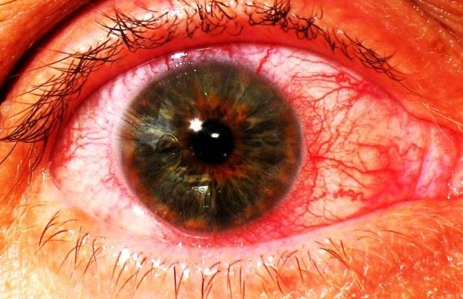 Увеит – симптомы и лечение глаза в домашних условиях
