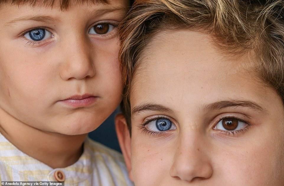 Люди с разными глазами