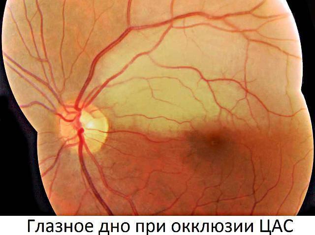 Тромбоз центральной вены сетчатки глаза: лечение, что это такое, цвс,