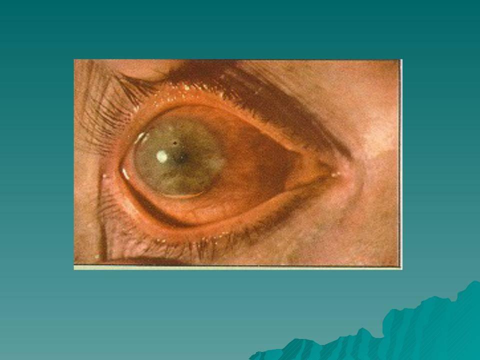 Иридоциклит (передний увеит). симптомы, причины, диагностика и лечение заболевания :: polismed.com