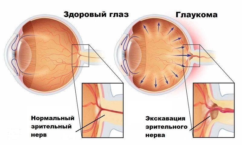 """Открытоугольная глаукома: как лечить - """"здоровое око"""""""