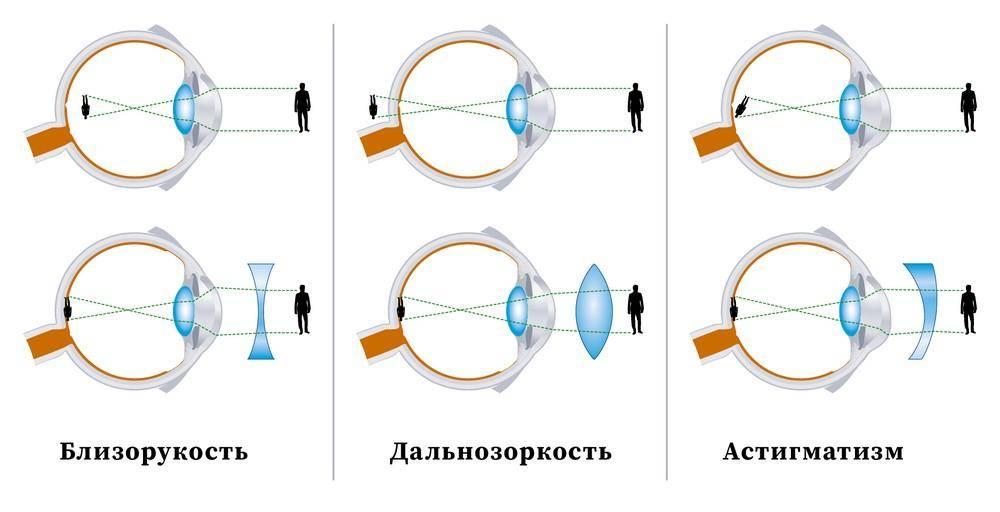 Астенопия что это за болезнь. что нужно знать о  астенопии. — офтальмология