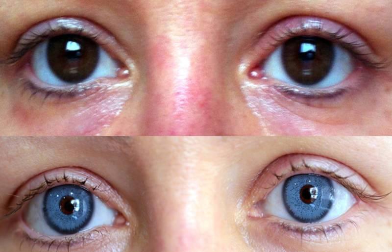 Операция для изменения цвета глаза   vip eye laser