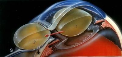 Экстракция катаракты: интракапсулярная и экстракапсулярная (с иол)