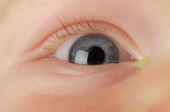 Закисают глаза у ребенка или взрослого человека: причины, что делать, как лечить закисания
