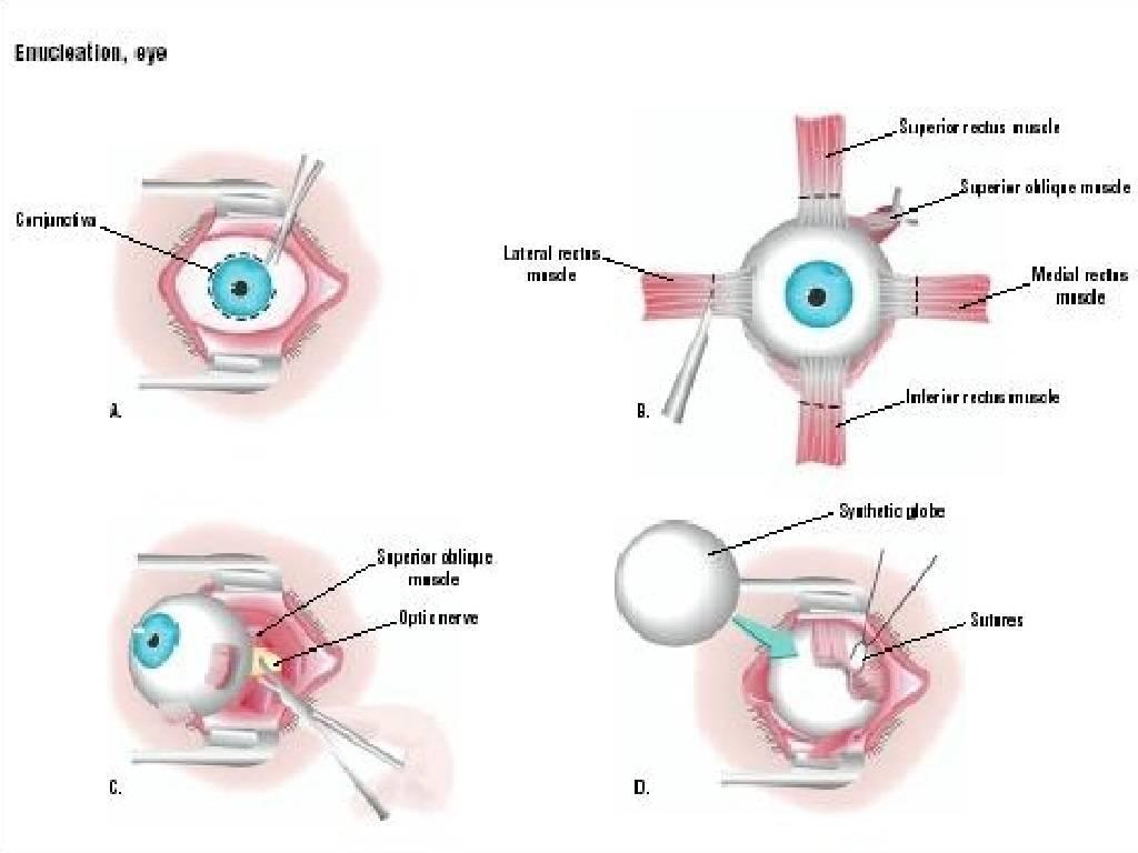 Энуклеация глаза что это показания проведение операции