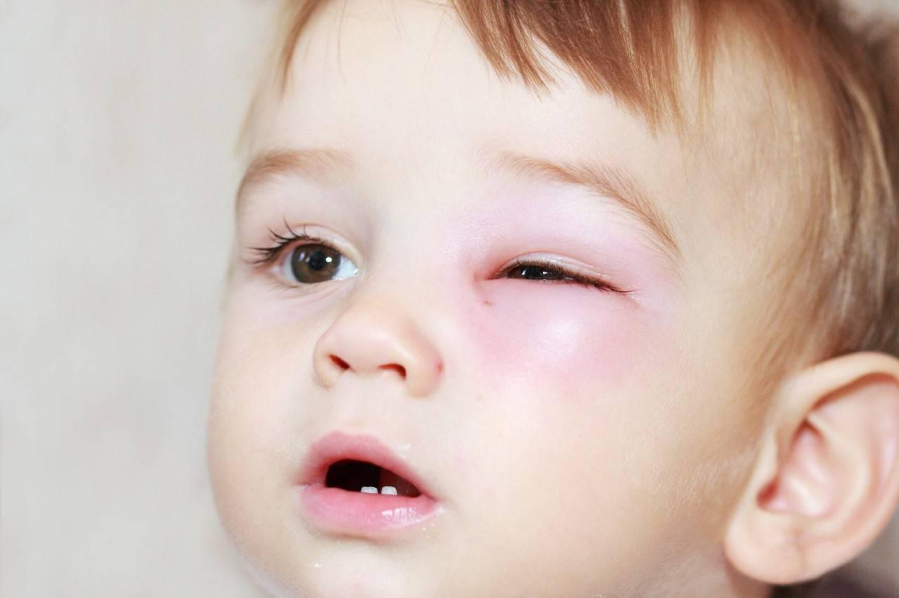 Болят глаза у ребенка: причины, что делать, как лечить