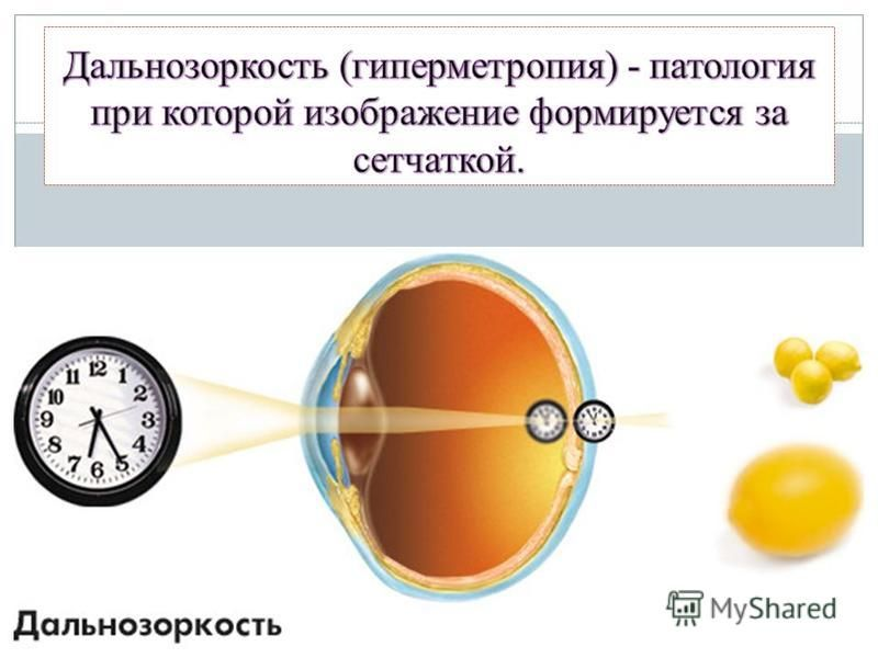 Можно ли вылечить гиперметропию высокой степени и по каким симптомам вовремя распознать дальнозоркость?
