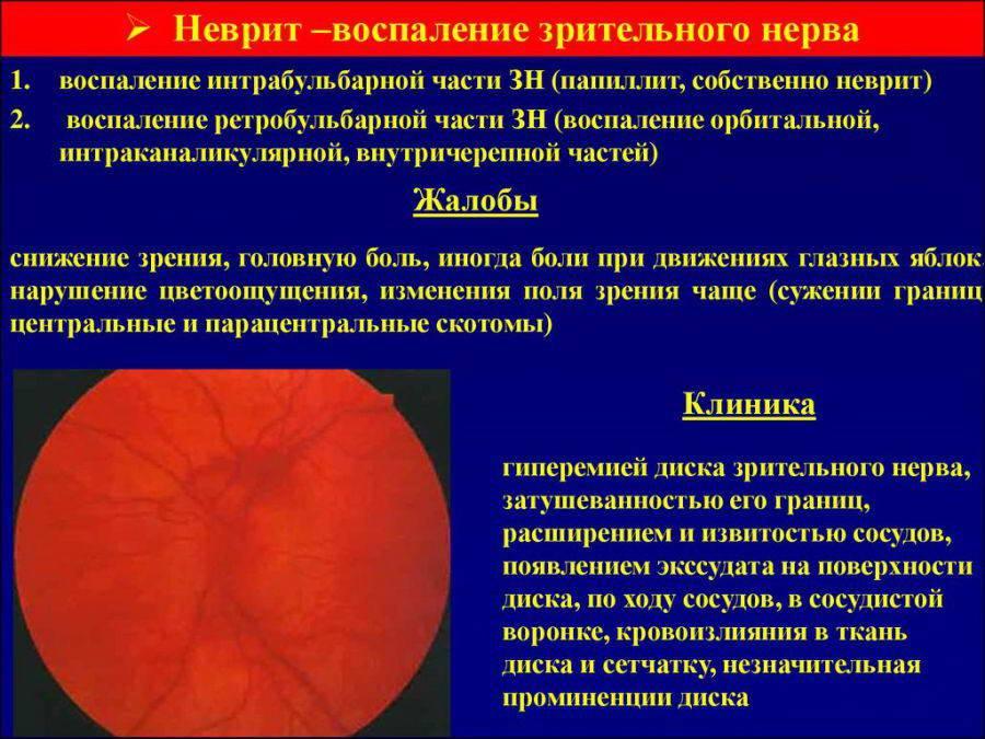 Атрофия зрительного нерва