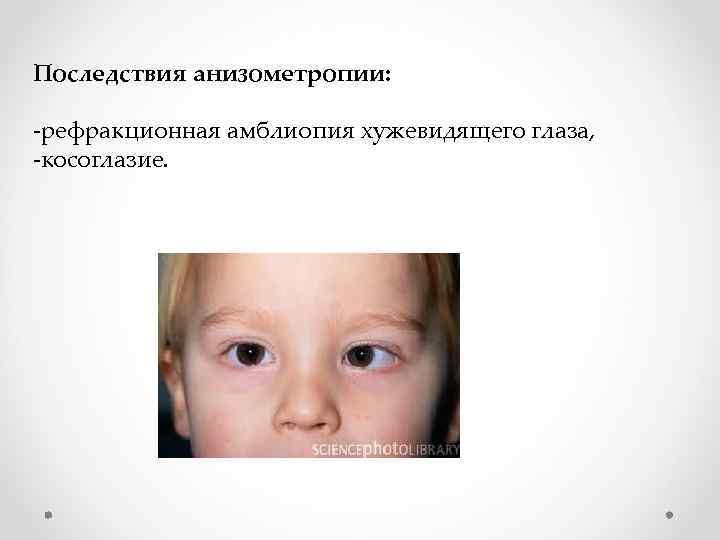 Астенопия что это за болезнь. что нужно знать о  астенопии.