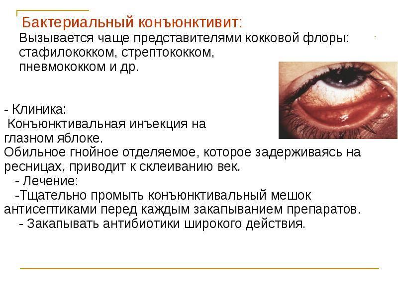 Блефароконъюнктивит: что это такое, симптомы, причины, лечение препаратами и народными средствами, диагностика, виды (аллергический, хронический), профилактика
