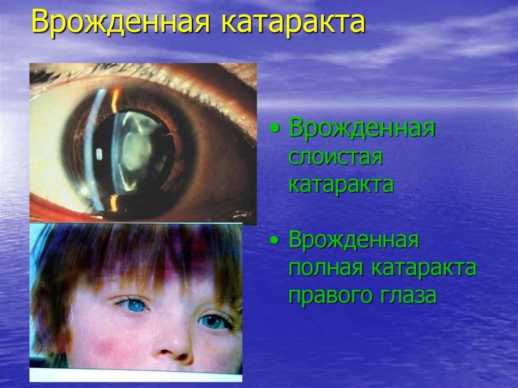 Способы коррекции врожденной катаракты, причины, последствия и профилактика