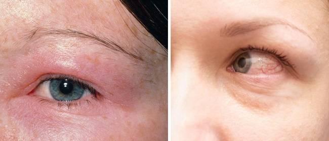 Почему болит бровь над глазом