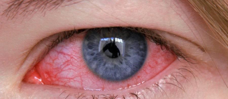Причины, по которым давит на глаза изнутри, и лечение этого заболевания