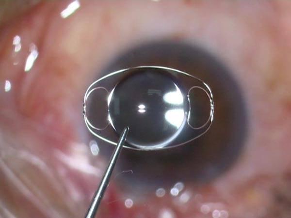 Артифакия глаза: что это такое, как лечить, показания и противопоказания, установка искусственного хрусталика, как проводят операцию, преимущества, осложнения
