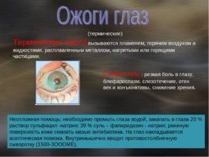 Ожог глаз от сварки: чем лечить и что делать, первая помощь народными средствами