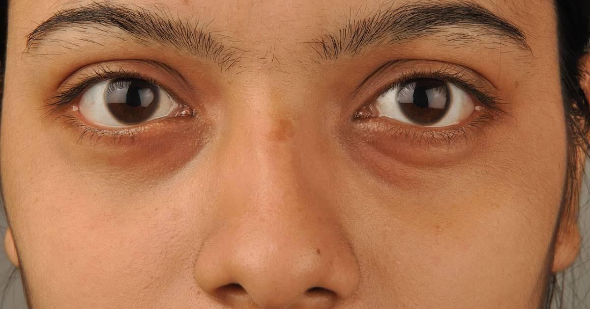 Желтые круги вокруг глаз у женщин причины. почему появляются