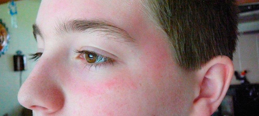 Красные точки под глазами: причины и лечение