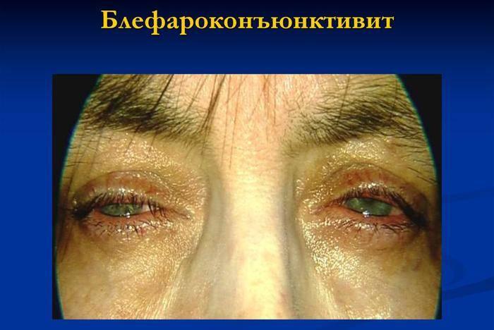 Почему появляется грибковый блефарит? — глаза эксперт