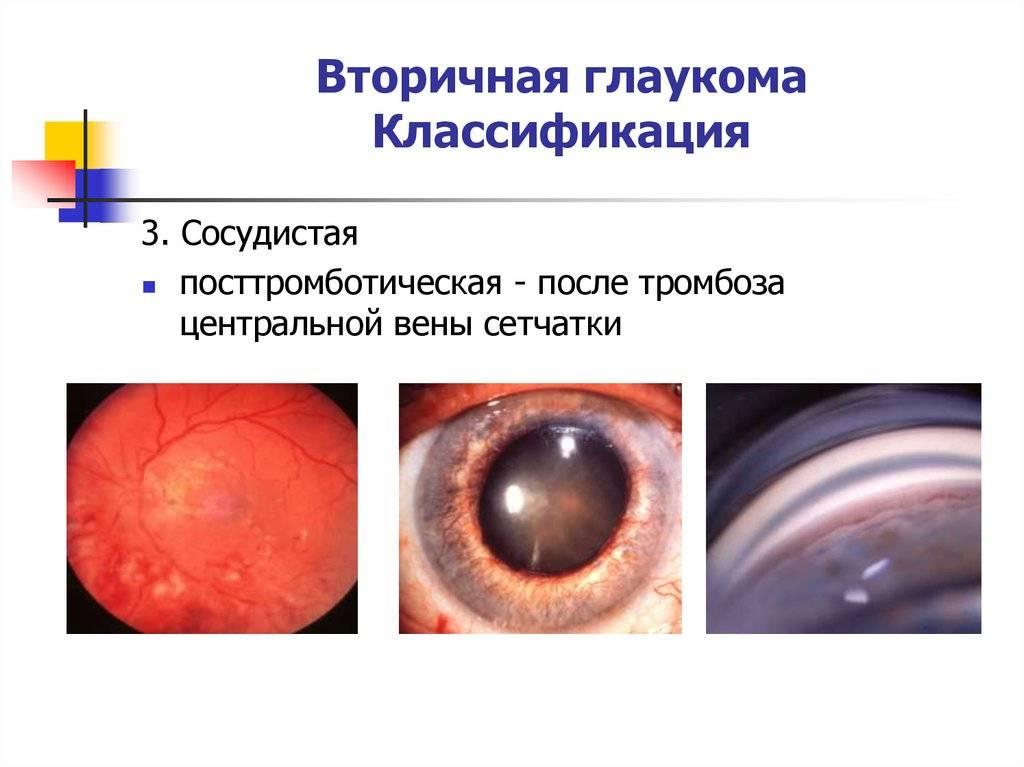 Вторичная глаукома: причины, виды, стимптомы, методы лечения и восстановления зрения — глаза эксперт