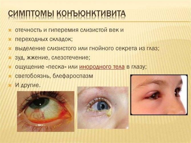 Бактериальный конъюнктивит у ребенка – симптомы, лечение, капли для глаз