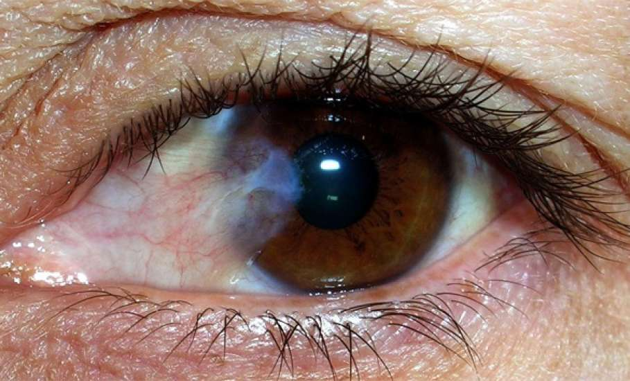 """Эрозия роговицы глаза: как лечить - """"здоровое око"""""""