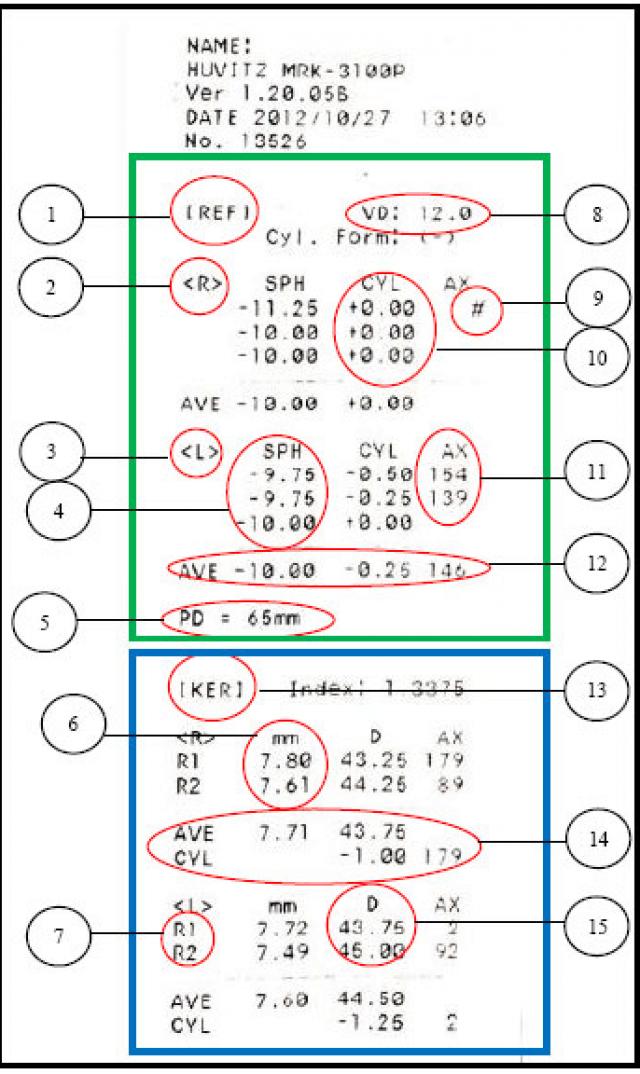 Что такое рефрактометрия глаза и для чего нужен компьютерный метод обследования рефракции, суть процедуры и расшифровка показателей