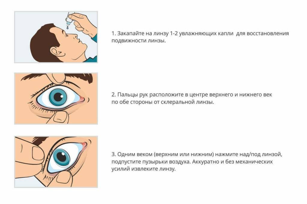 Ощущение инородного тела в глазу. глаз болит, как будто что-то попало