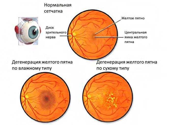 Ангиопатия сетчатки глаза: причины, виды, лечение
