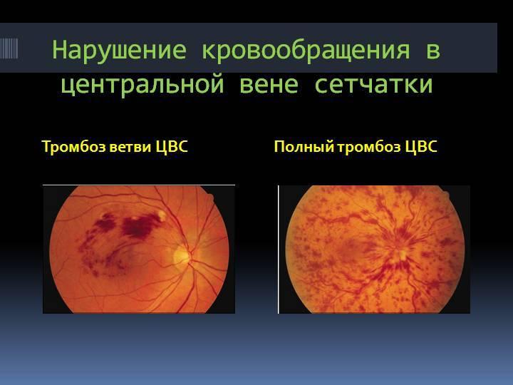 Что такое тромбоз цвс глаза, методы лечения заболевания oculistic.ru что такое тромбоз цвс глаза, методы лечения заболевания
