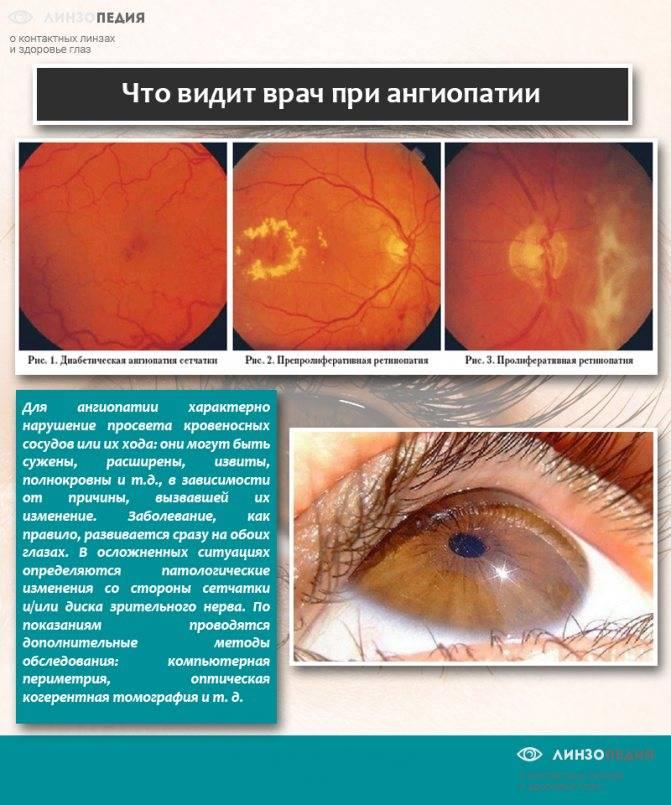 Ангиопатия сетчатки обоих глаз: что это такое, симптомы и лечение