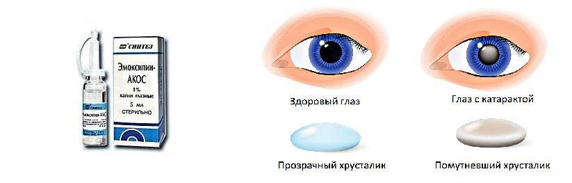 Капли глазные при кровоизлиянии в глазу – что капать, какие капли