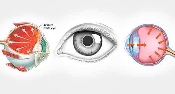 Безопасные и эффективные народные средства от глазного давления