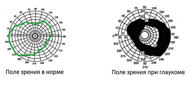 Компьютерная периметрия глаза - методики проведения