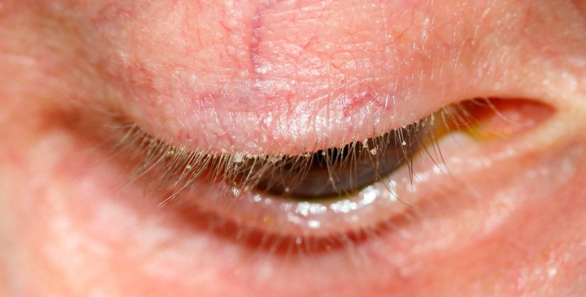 Мейбомиевый блефарит: причины, симптомы, лечение (капли, мази, народные средства, массаж), диагностика, фото, профилактика