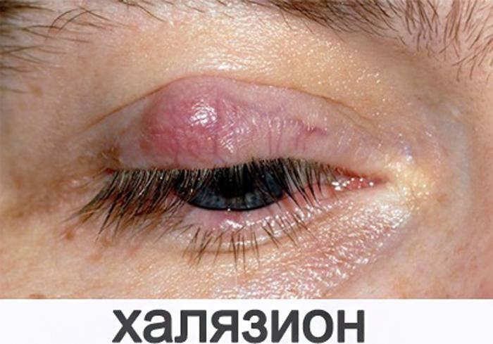 Шишка на верхнем веке глаза: симптомы и лечение