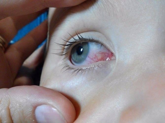 Cлезотечение на улице и на холоде: причины, лечение, капли для глаз