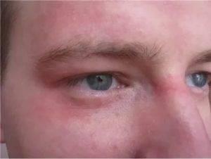 Чешутся глаза в уголках около переносицы – причины и лечение